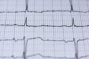EKG- Ausdruck