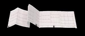 Schrittmacher - EKG