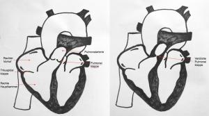 Pulmonalstenose beim Welpen