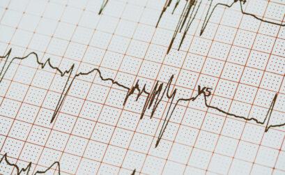 24 Stunden EKG